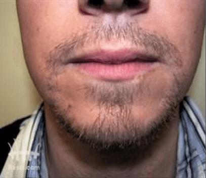 Haartransplantatie baard na behandeling
