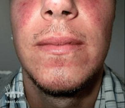 Haartransplantatie baard voor behandeling