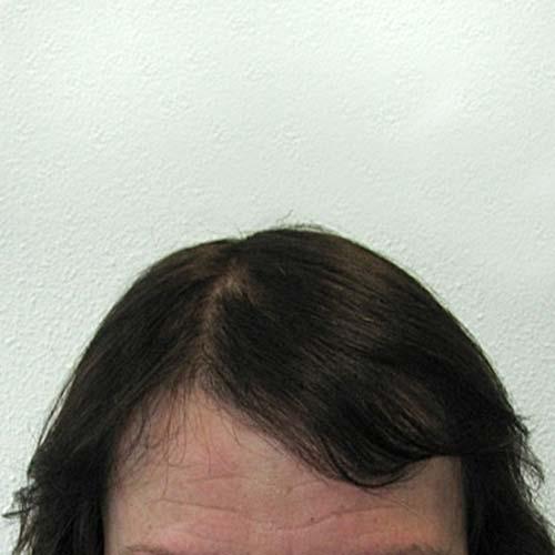 Haartransplantatie bij vrouw na HST-methode