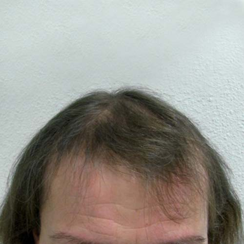 Hair transplant in woman for HST method