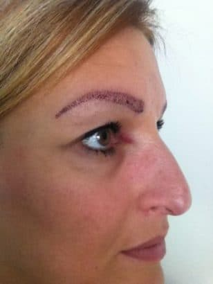 Eyebrows after the hairtransplantation