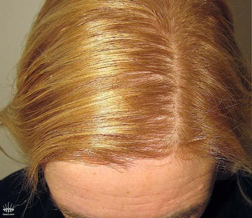 Haaruitval-bij-vrouw-na-haartransplantatie