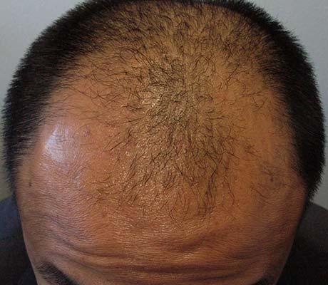 Haargrens voor haartransplantatie man