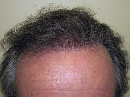 Haartransplantatie man na behandeling patient