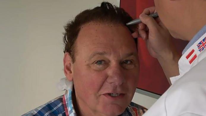 Jan de Hoop haartransplantatie voorbereiding