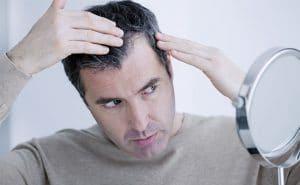 Hair loss due to androgenic alopecia