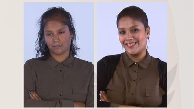 voor en na foto's vooraanzicht van Indrani deelneemster in Lelijke eendjes haartransplantatie