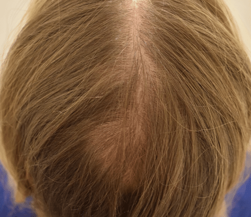 Litteken na haartransplantatie