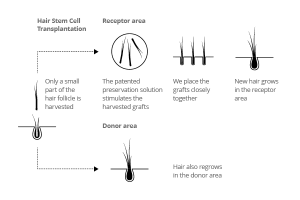 schedule Hair Stem Cell transplantation